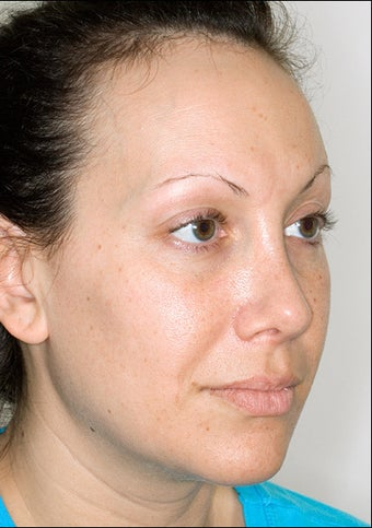 Rhinoplasty after 1023309