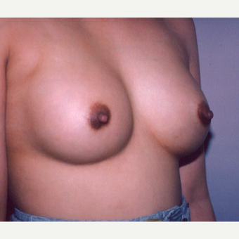 25-34 year old woman treated with Breast Augmentation after 3538720