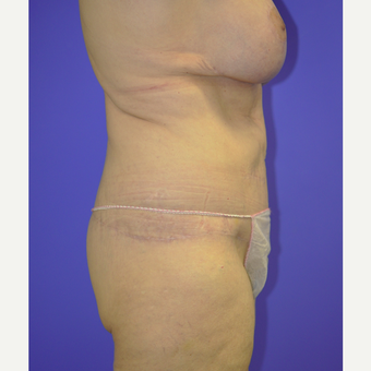55-64 year old woman treated with Body Lift after 3455257