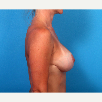 35-44 year old woman treated with Breast Implant Revision after 3366691