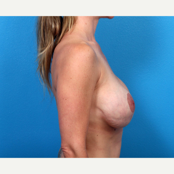 35-44 year old woman treated with Breast Implant Revision before 3366691