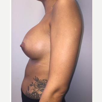 18-24 year old woman treated with Breast Augmentation after 3400595