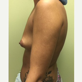 18-24 year old woman treated with Breast Augmentation before 3400595