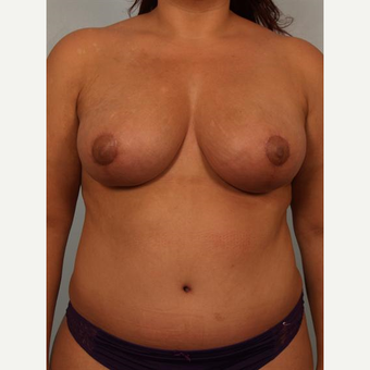 35-44 year old woman treated with Breast Fat Transfer after 3502642