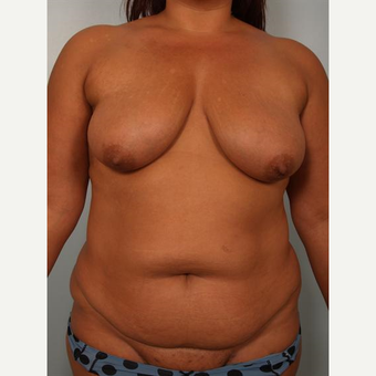 35-44 year old woman treated with Breast Fat Transfer before 3502642