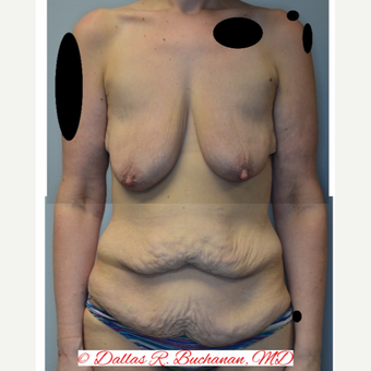 25-34 year old woman treated with Mommy Makeover before 3242216