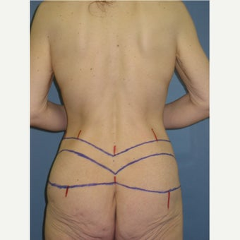 25-34 year old woman treated with Body Lift before 1835106