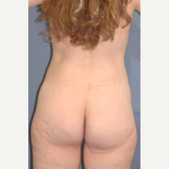 25-34 year old woman treated with Body Lift after 1835106