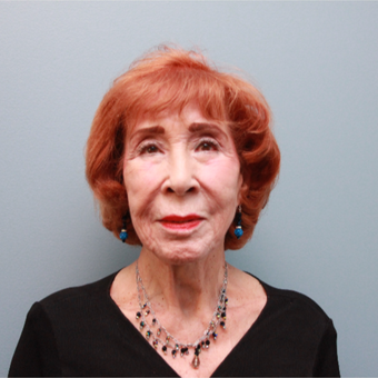 83 year old woman treated with the LiteLift® which is similar to the Lifestyle Lift before 3544496