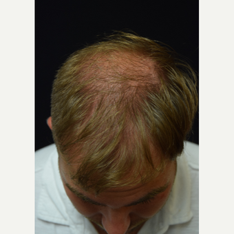 25-34 year old man treated with FUE Hair Transplant before 3213818