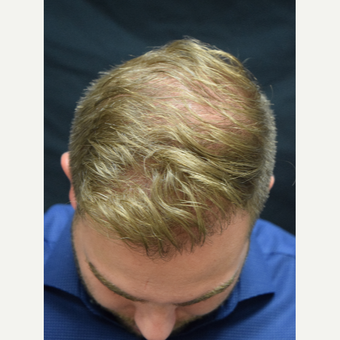 25-34 year old man treated with FUE Hair Transplant after 3213818