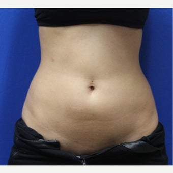 25-34 year old woman treated with SculpSure before 2422975