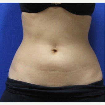 25-34 year old woman treated with SculpSure after 2422975