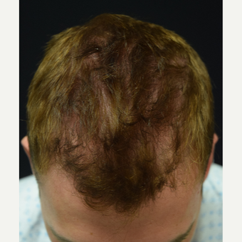 25-34 year old man treated with Hair Transplant before 3339238