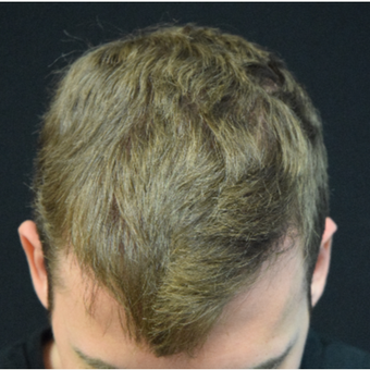 25-34 year old man treated with Hair Transplant after 3339238
