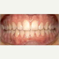 17 or under year old man treated with Lingual Braces