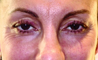 45-54 year old woman treated with Botox before 1988698