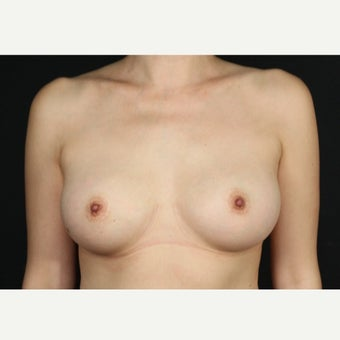 45-54 year old female, 330cc Saline Breast Implant Removal.  Local anesthetic. before 2434162