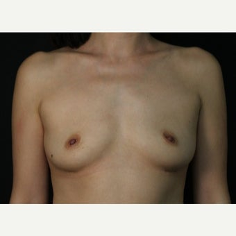 45-54 year old female, 330cc Saline Breast Implant Removal.  Local anesthetic. after 2434162