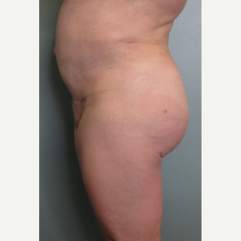 Brazilian Buttock Lift, Liposuction of the Abdomen & Flanks after 3852927