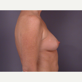 45-54 year old woman treated with Breast Augmentation before 3278111
