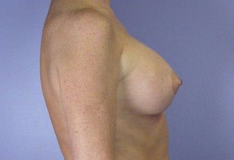 45-54 year old woman treated with Breast Augmentation after 3278111