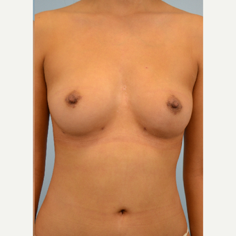 34 year old woman treated with Breast Fat Transfer after 3432113