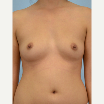 34 year old woman treated with Breast Fat Transfer before 3432113