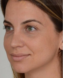 25-34 year old woman treated with Rhinoplasty after 3259308
