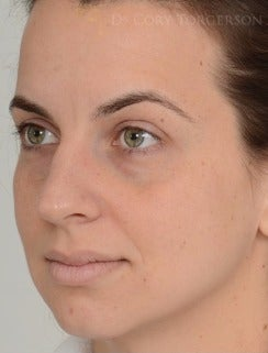 25-34 year old woman treated with Rhinoplasty before 3259308