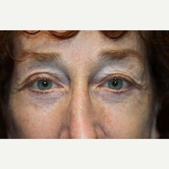 55-64 year old woman treated with Brow Lift after 3147944