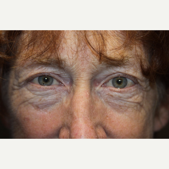 55-64 year old woman treated with Brow Lift before 3147944