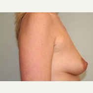 35-44 year old woman treated with Breast Lift before 3338959