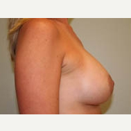 35-44 year old woman treated with Breast Lift after 3338959