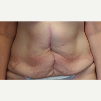 52 year old man treated with a Tummy Tuck before 3702393