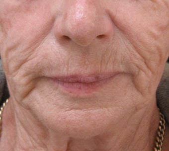 Reduce fine lines around the mouth with dermal fillers before 3364370