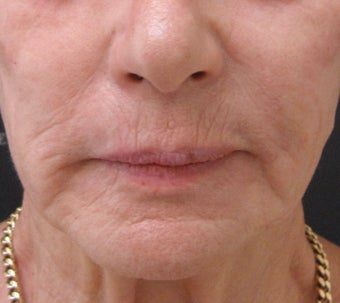 Reduce fine lines around the mouth with dermal fillers after 3364370