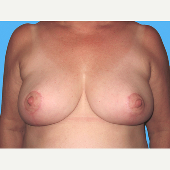 Breast Reduction after 3809915