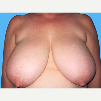Breast Reduction before 3809915