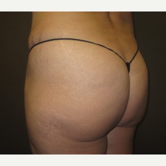 45-54 year old woman treated with Butt Augmentation before 3241451