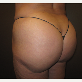 45-54 year old woman treated with Butt Augmentation after 3241451