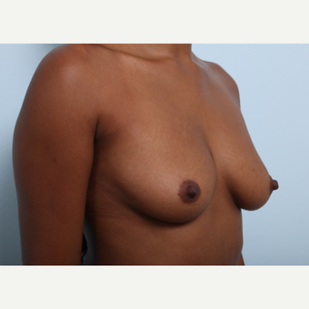 Breast Augmentation before 3425528