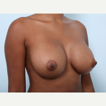 Breast Augmentation after 3425528