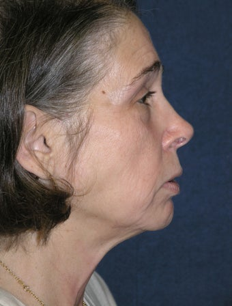 Facelift and Lower Lid Blepharoplasty before 1411319