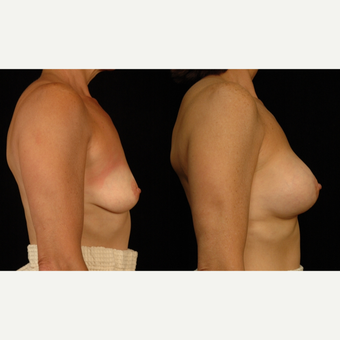 45-54 year old woman treated with Breast Lift with Implants after 3659773