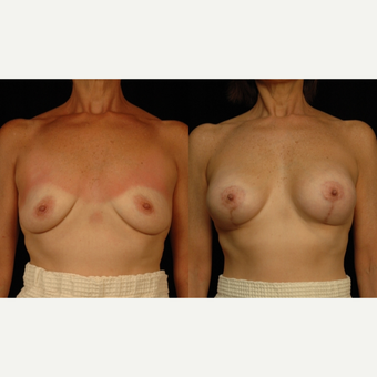 45-54 year old woman treated with Breast Lift with Implants before 3659773