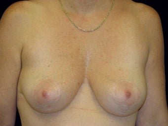 Breast Lift with Short Vertical Scar - San Francisco, California after 1050390