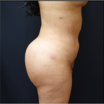 25-34 year old woman treated with Brazilian Butt Lift after 3286163