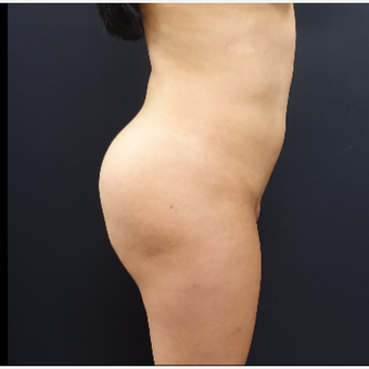 25-34 year old woman treated with Brazilian Butt Lift before 3286163