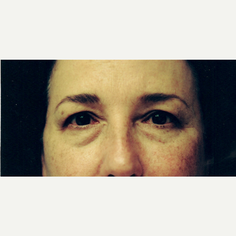 45-54 year old woman treated with Eyelid Surgery before 3236296